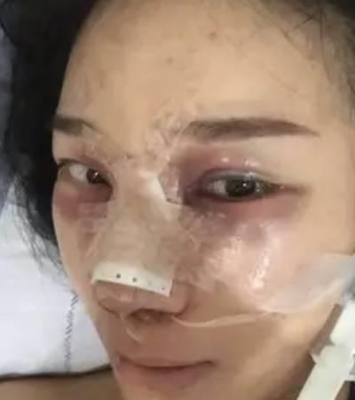 在郑州辰星整形医疗美容医院做了假体隆鼻修复手后第2天
