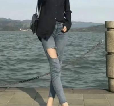 郑州辰星于鑫医生为我做吸脂瘦大腿手术后90天