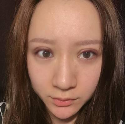 在郑州辰星找于鑫医生做眼综合整形手术后