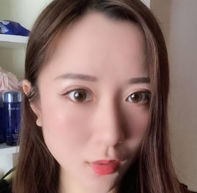 在郑州辰星找于鑫医生做眼综合整形手术后15天
