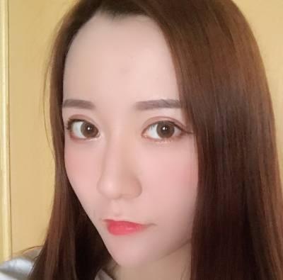 在郑州辰星找于鑫医生做眼综合整形手术后20天