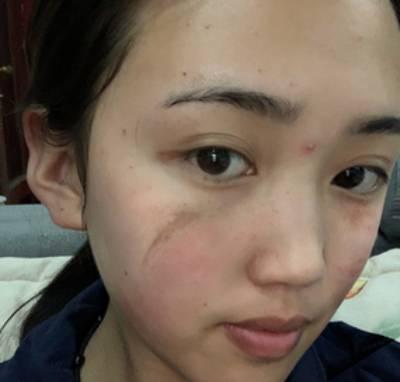 风千羽的手术祛疤术前照