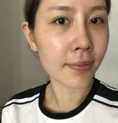 在北京301整形医院做了激光祛疤手术后两个月