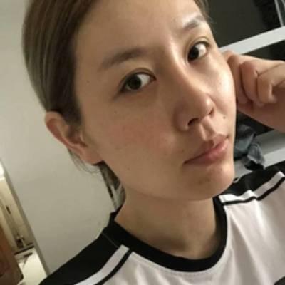 在北京301整形医院做了激光祛疤手术后120天