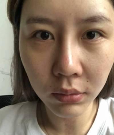 在北京301整形医院做了激光祛疤手术后