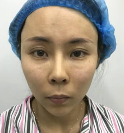 为将来而努力的假体隆鼻修复术前照
