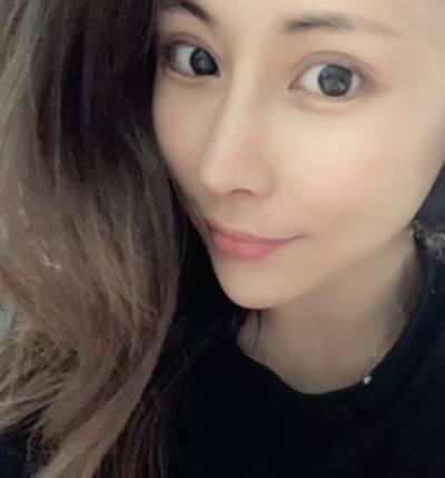 在郑州东方整形美容医院做了隆鼻失败手术后7天