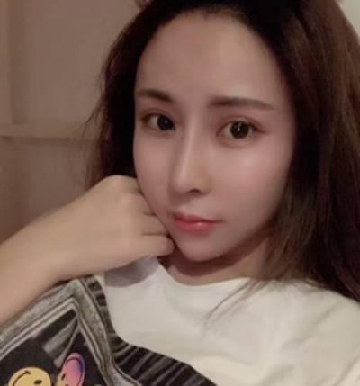 在郑州东方整形美容医院做了隆鼻失败手术后1个月