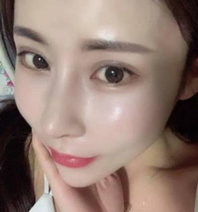 在郑州东方整形美容医院做了隆鼻失败手术后个月
