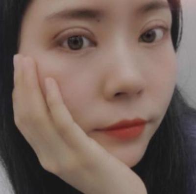 去郑州东方整形医院做眼综合整形手术后半个月