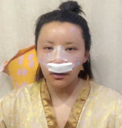 吴振医生为我做的鼻综合整形手术后1天