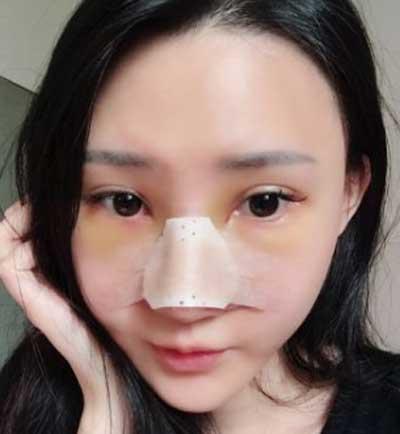郑州东方整形医院黄军伟为我做的鼻综合整形手术后第3天