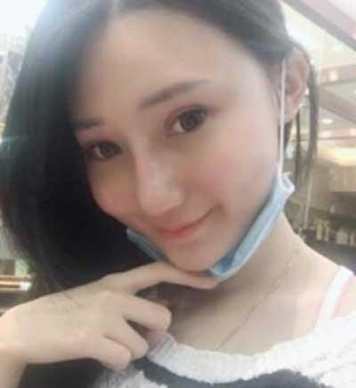 郑州东方整形医院黄军伟为我做的鼻综合整形手术后第7天
