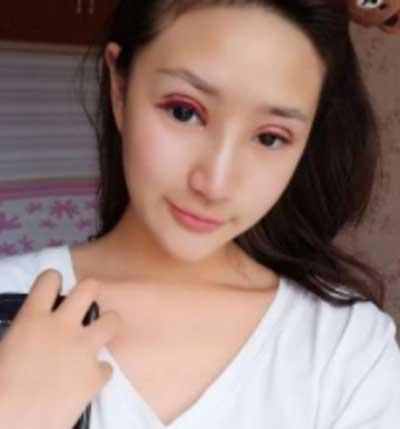 河南整形美容医院的鲁华医生为我做全切双眼皮手术后第1天