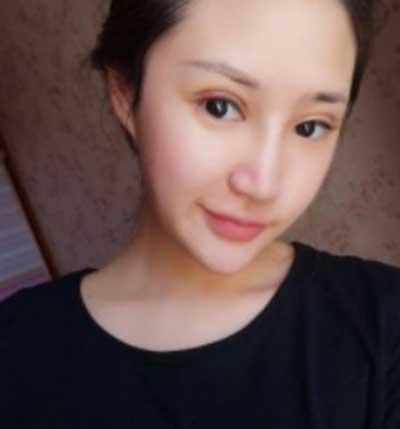 河南整形美容医院的鲁华医生为我做全切双眼皮手术后第6天