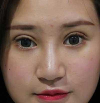 河南整形美容医院的鲁华医生为我做全切双眼皮手术后第7天