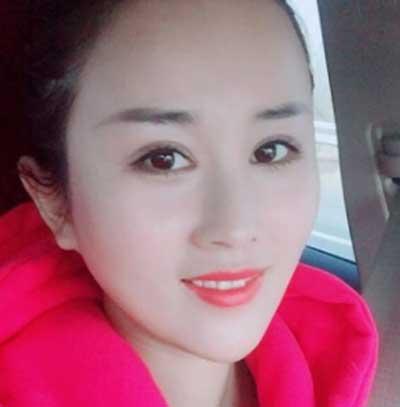 去河南整形美容医院找王妍芝做埋线提升手术后