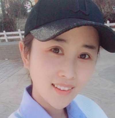 去河南整形美容医院找王妍芝做埋线提升手术后1个月