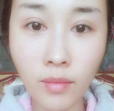 去河南整形美容医院找王妍芝做埋线提升手术后40天