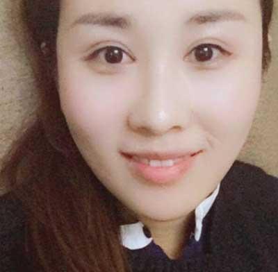 去河南整形美容医院找王妍芝做埋线提升手术后60天