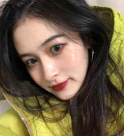 去郑州天后医疗美容医院找张艳文为我做了激光去红血丝手术后30天
