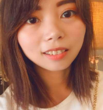 在郑州天后医疗美容医院做了陶瓷隐形托槽矫正手术后15天
