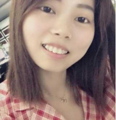 在郑州天后医疗美容医院做了陶瓷隐形托槽矫正手术后1个月