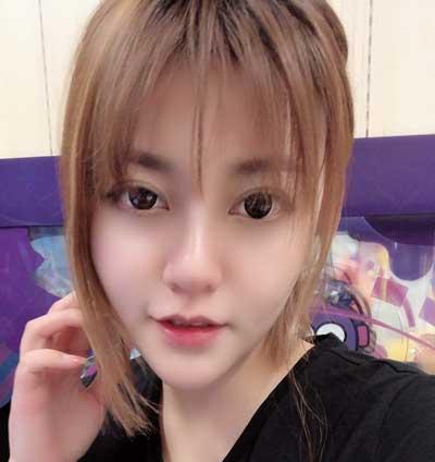 去郑州天后医疗美容医院做超声刀手术后15天