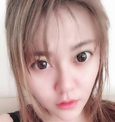 去郑州天后医疗美容医院做超声刀手术后30天