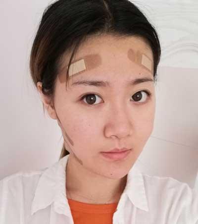 去郑州悦美整形美容医院做自体脂肪面部填充手术后