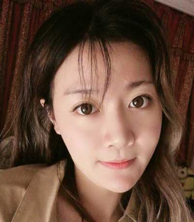 去郑州悦美整形美容医院做自体脂肪面部填充手术后3天