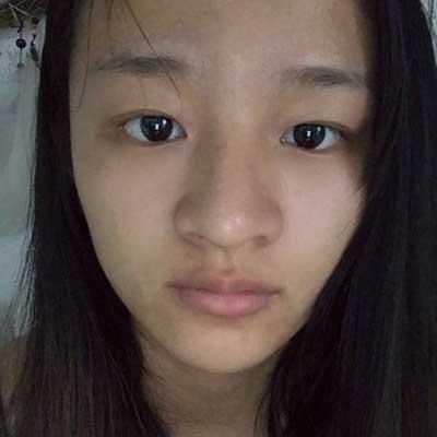 浅色夏沫的鼻综合整形术前照