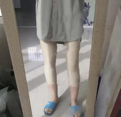 在郑州悦美找张二伟医生做吸脂瘦大腿手术后15天