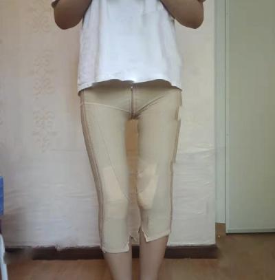 在郑州悦美找张二伟医生做吸脂瘦大腿手术后4天
