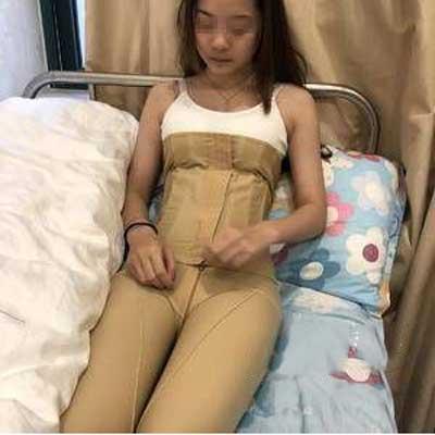 在郑州悦美整形美容医院做吸脂瘦腰腹+瘦大腿手术后7天