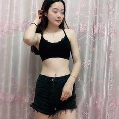 在郑州悦美整形美容医院做吸脂瘦腰腹+瘦大腿手术后1个月