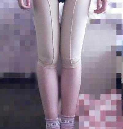 摘下星星给你的吸脂瘦大腿术后照