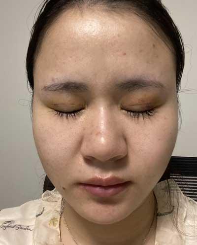 在郑州安琪儿医疗美容诊找朴明旭医生做埋线双眼皮手后7天