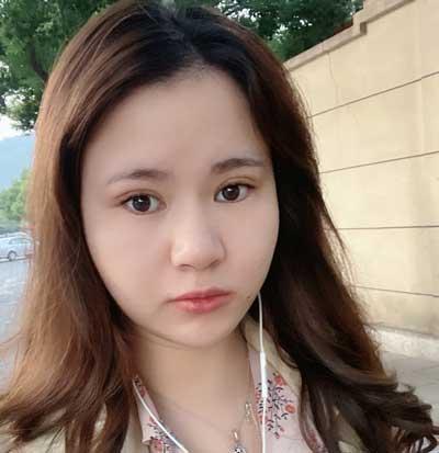 在郑州安琪儿医疗美容诊找朴明旭医生做埋线双眼皮手后10天