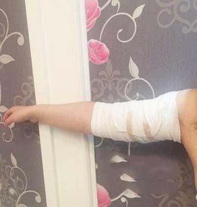 去郑州安琪儿医疗美容诊所做了吸脂瘦手臂手术后