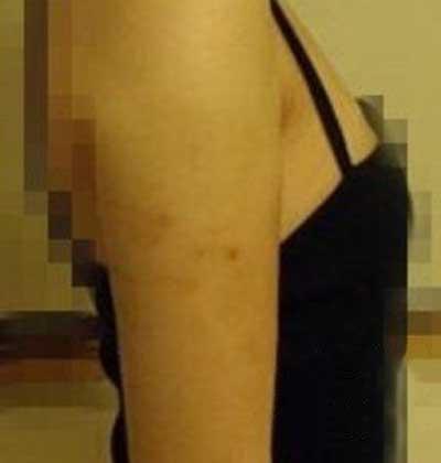 去郑州安琪儿医疗美容诊所做了吸脂瘦手臂手术后15天