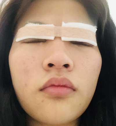 在郑州安琪儿找田新丽做了眼综合整形手术后