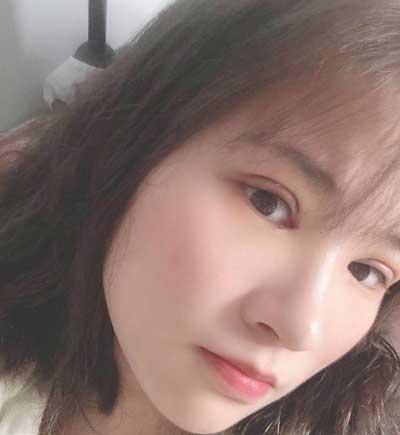 在郑州安琪儿找田新丽做了眼综合整形手术后第5天