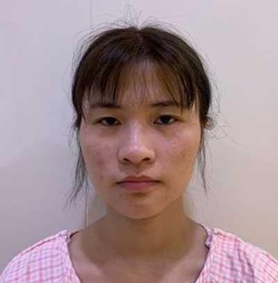 在郑州安琪儿找田新丽做了眼综合整形手术前