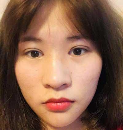 在郑州安琪儿找田新丽做了眼综合整形手术后第7天
