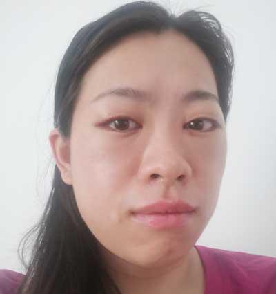 找张跃辉院长为我做了激光去眼袋手术后7天