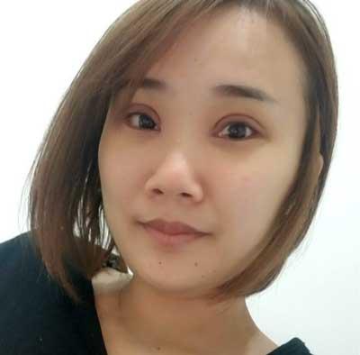 郑州梨花雨的张跃辉院长为我做的全切双眼皮手术后7天