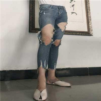 丹彤的吸脂瘦大腿术后照