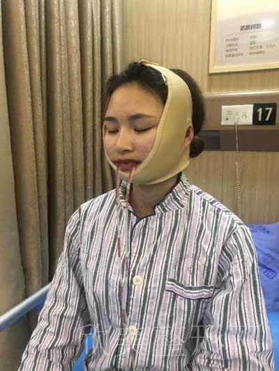 小美的下颌角磨骨术前照