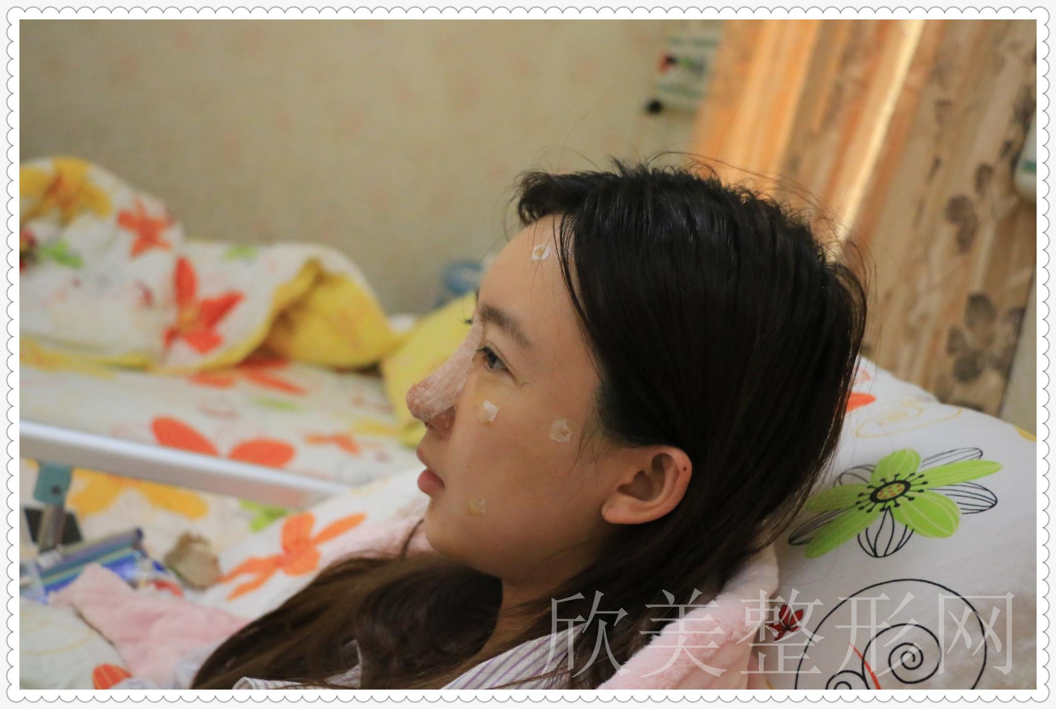 菲儿的鼻综合术前照